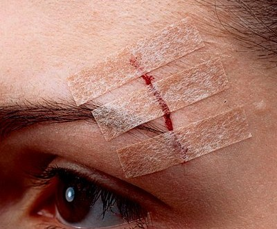 Los puntos de esparadrapo o de aproximación (steri-strips) deben calificarse como tratamiento médico